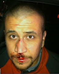 George Zimmerman, minutes after brutal beating by Trayvon Martin.