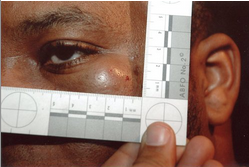 Rico Gray's injuries following beating by Marissa Alexander