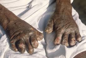 https://commons.wikimedia.org/wiki/File:Leprosy_deformities_hands.jpg