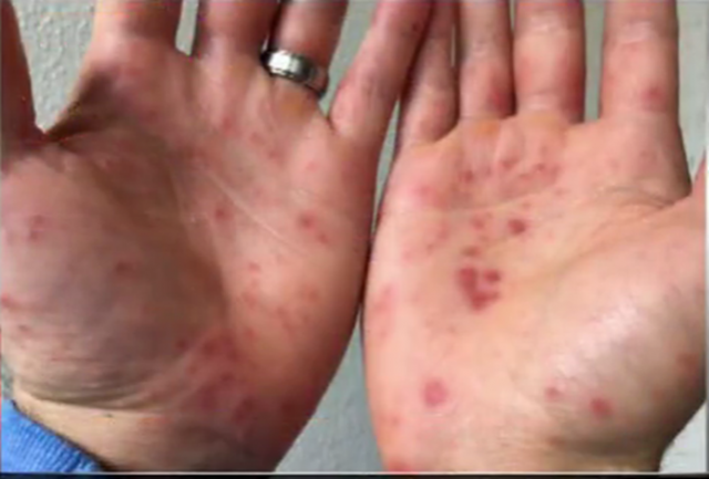 http://kron4.com/2016/10/26/video-hand-foot-and-mouth-disease-popping-up-at-college-campuses-nationwide/